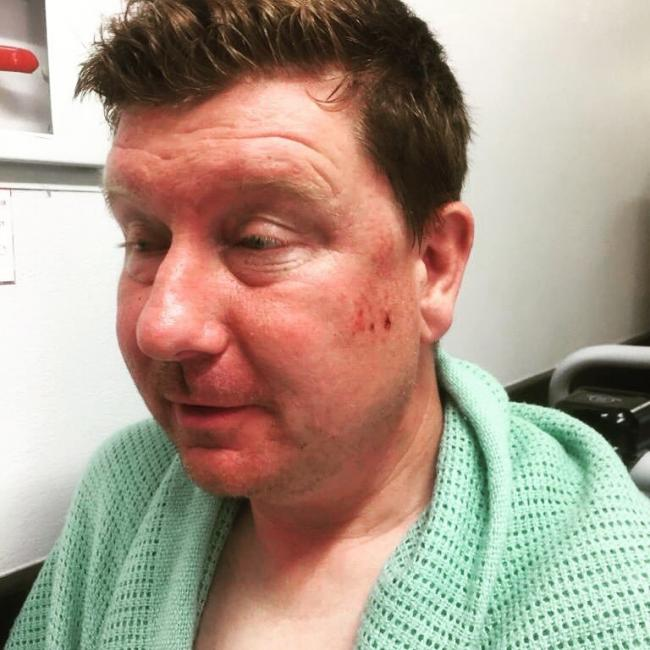 Ian Tierney, who was left injured following a hit and run in Hawarden on Saturday